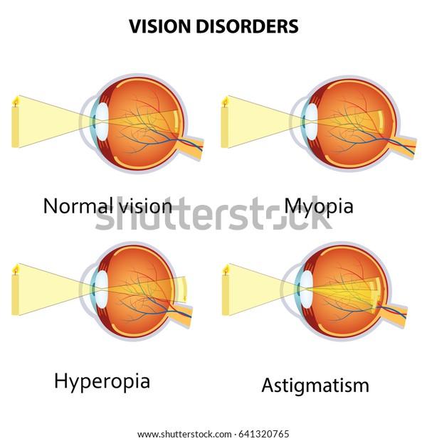 az asztigmatizmus befolyásolja-e a látást