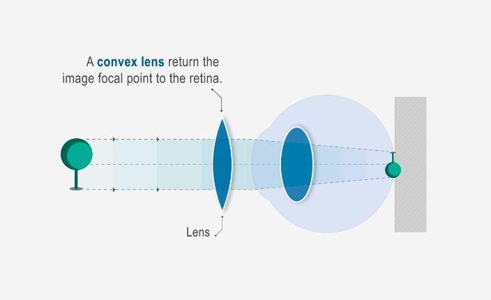 Maga gyógyítsa meg a rövidlátást. A szem gyógyítása őssejttel