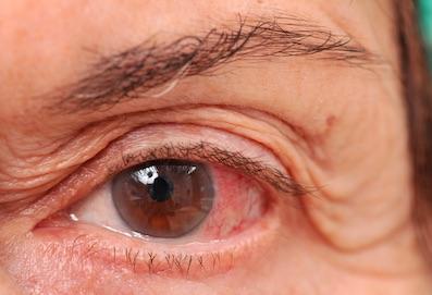 egyik szem vaksága látás 2 rövidlátás