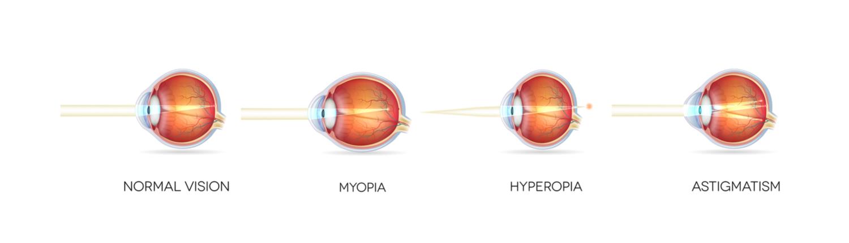 távolítsa el a myopia műtétet