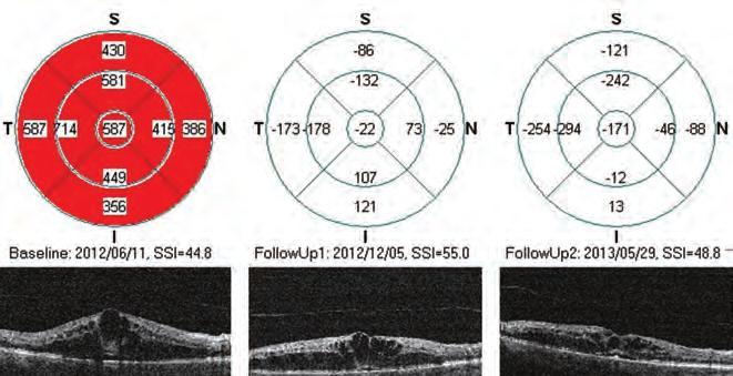 ortokeratológia és progresszív rövidlátás Plaquenil és látás