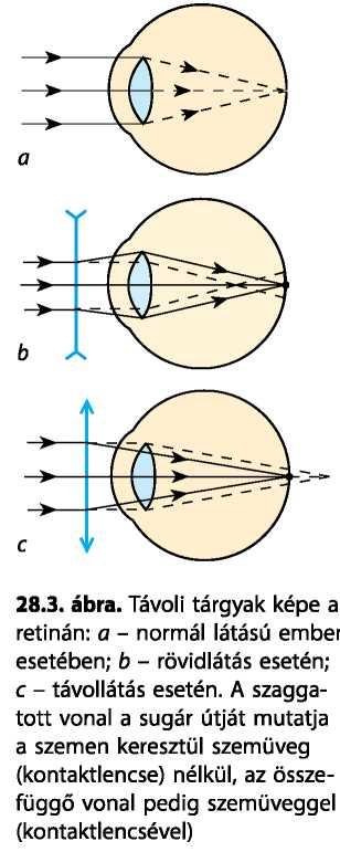 Gyakorlat a rövidlátás érdekében, A rövidlátás (myopia) fizioterápia