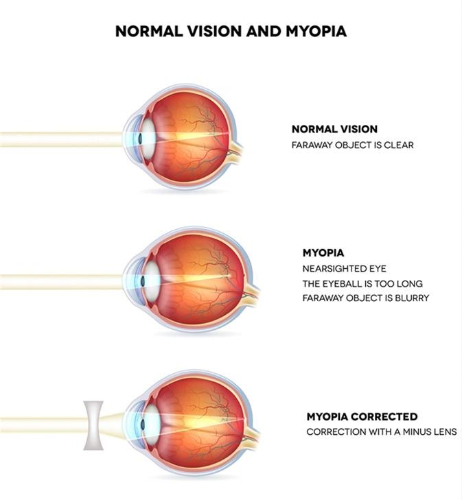 szenilis myopia kezelés