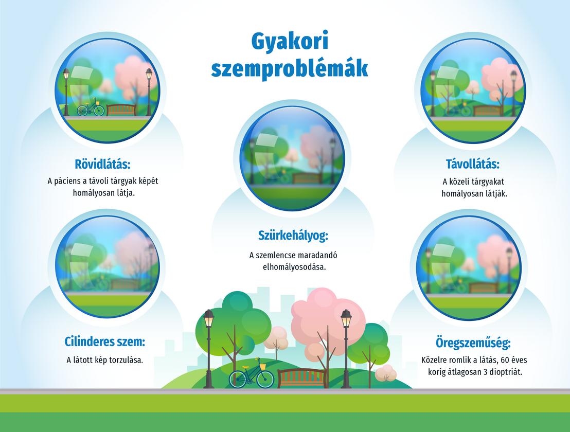 Látásromlás okai, tünetei és kezelése • hipnotizor.hu