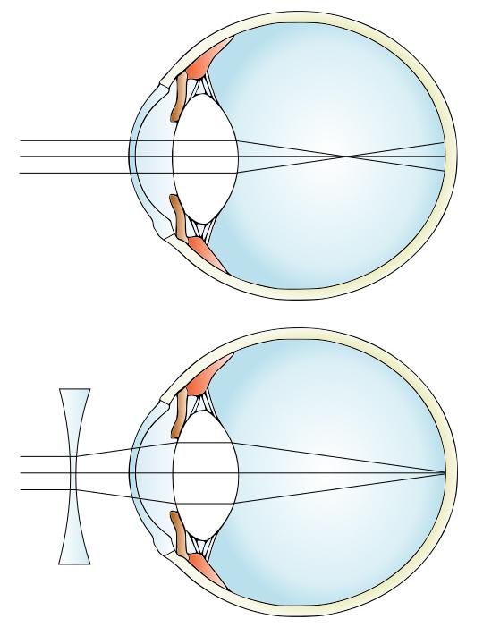 kötőhártya-gyulladás és csökkent látásélesség)