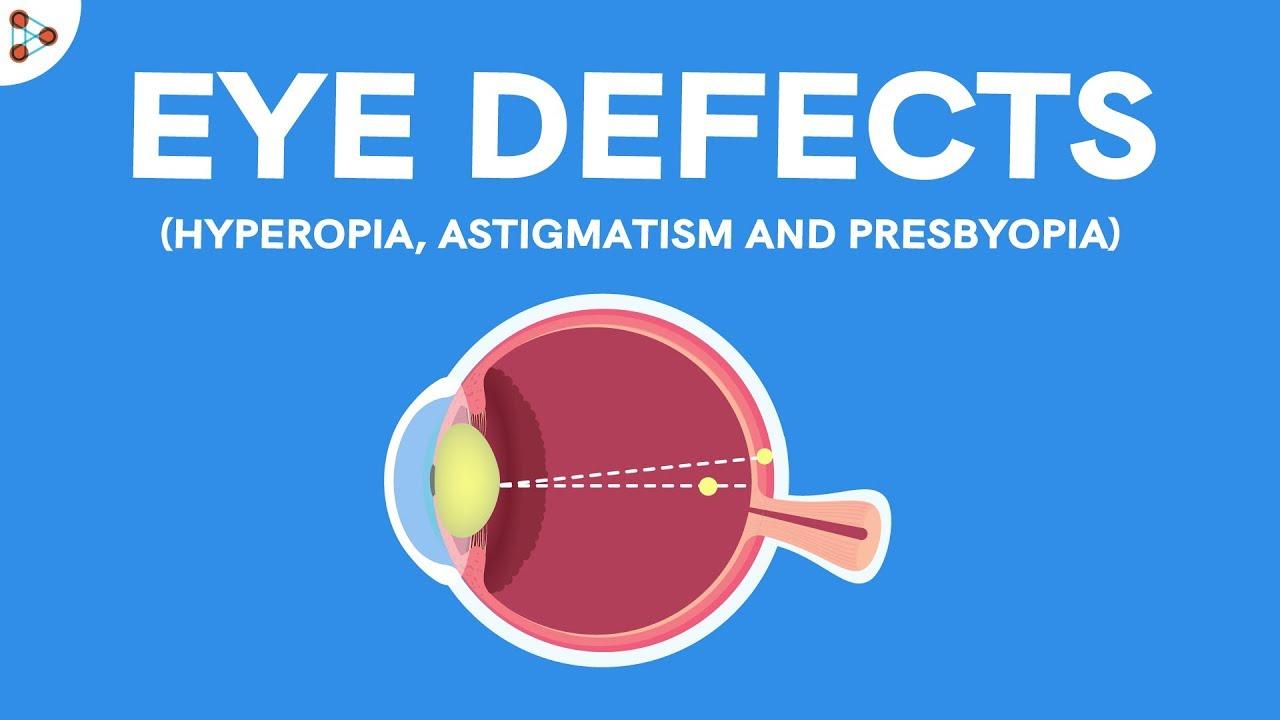 Mérsékelt myopia: hogyan kell kezelni? A myopia következményei - Látomás -