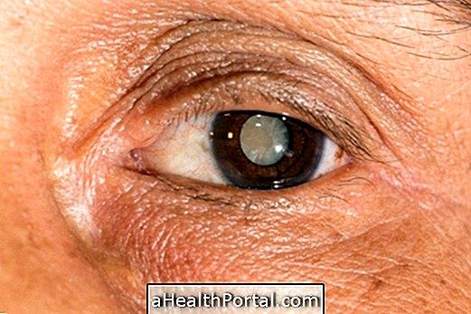 Az egyik szem látása jelentősen romlott, A látás jelentősen romlott