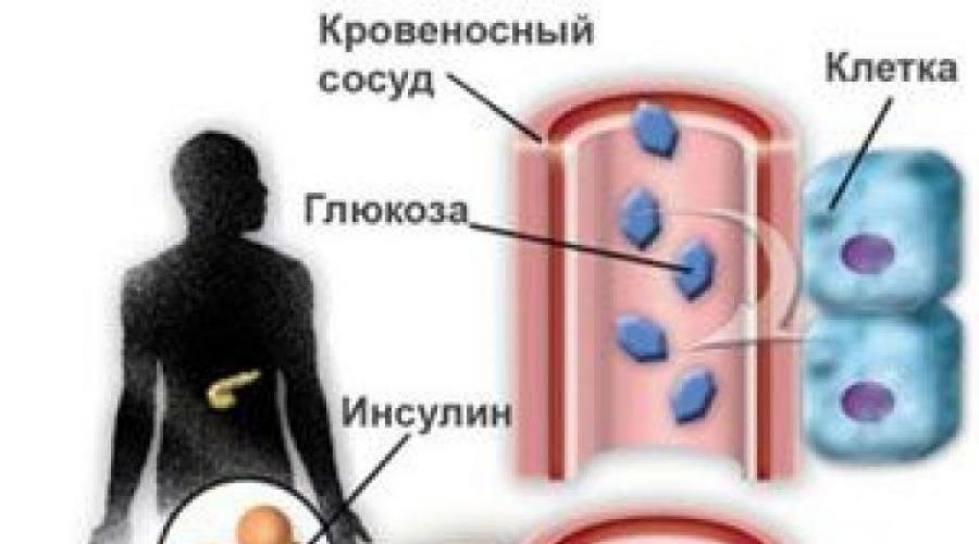 A látáskárosodás megelőzése és típusai