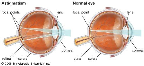 távollátás alakul ki hogyan lehet javítani a látást életkor szerint