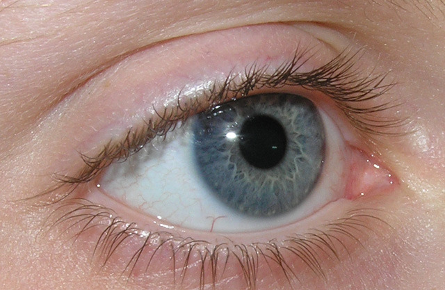 látás a CVS trombózis után