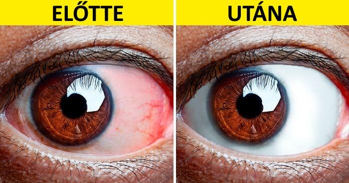 A látás mínusz myopia vagy hyperopia - Új jövőkép megjegyzéseket