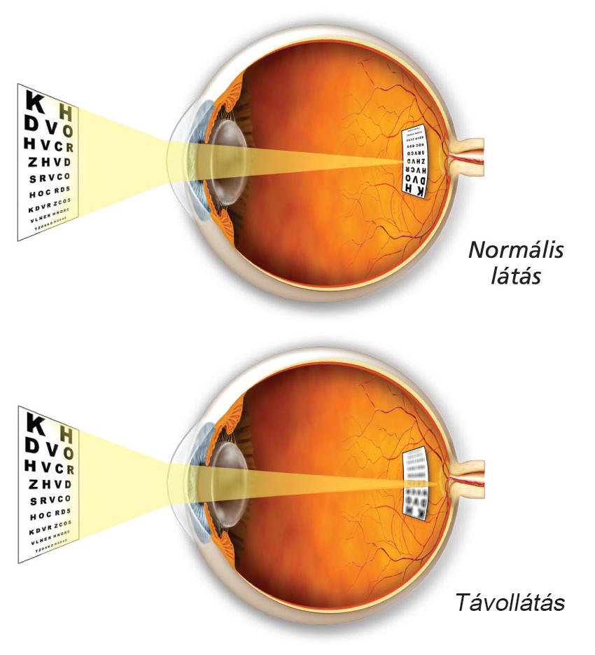 gyenge látás 10