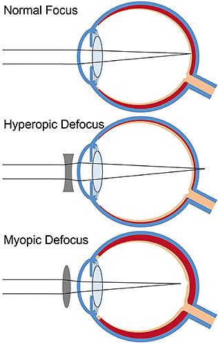 a szem myopia diszfunkciója