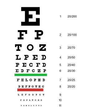 Ha a látás mínusz 12