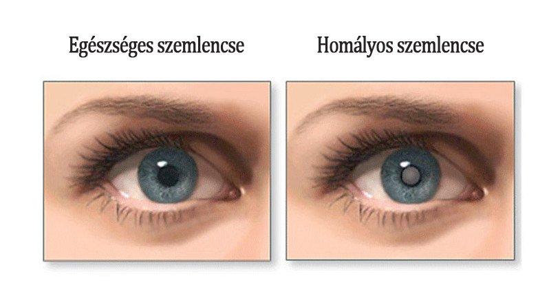 szürkehályog műtét után a látás romlott)