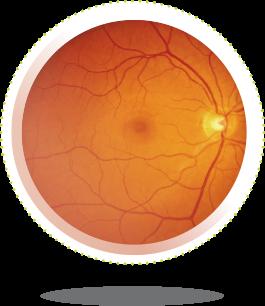 hogyan lehet támogatni a látást súlytalanság látása