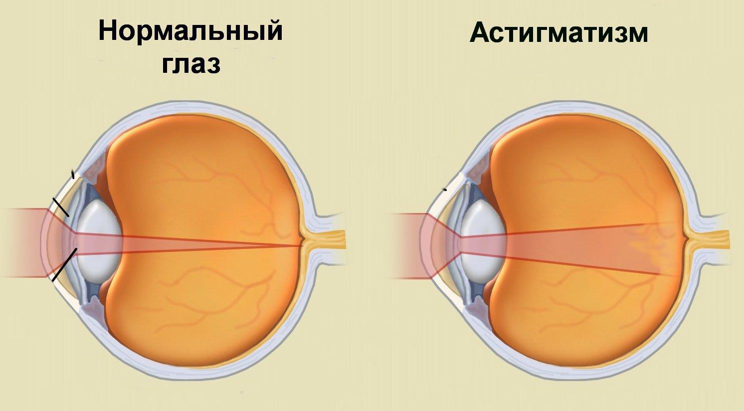 megnyomja a szemet; a látás romlik