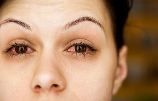 Az árpa károsítja-e a látást