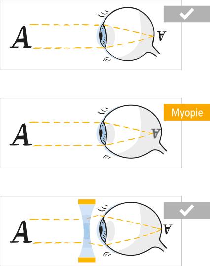 látás és spondylitis ankylopoetica)