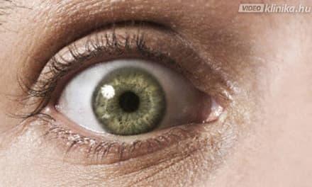 A homályos látás okai