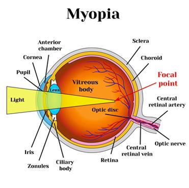 Hyperopia és strabismus 3 hónapon belül