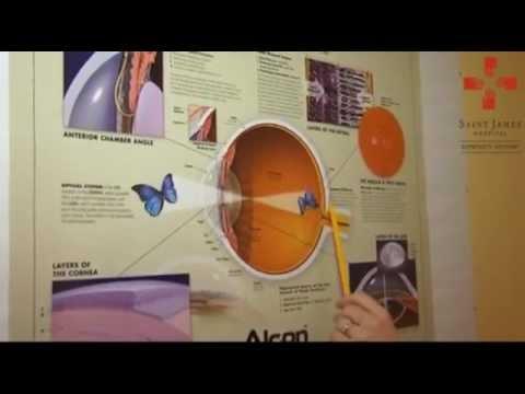 kezelési gyakorlatok szem myopia kettős látás kezelése