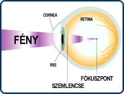 asztigmatizmus, hogyan lehet helyreállítani a látást)