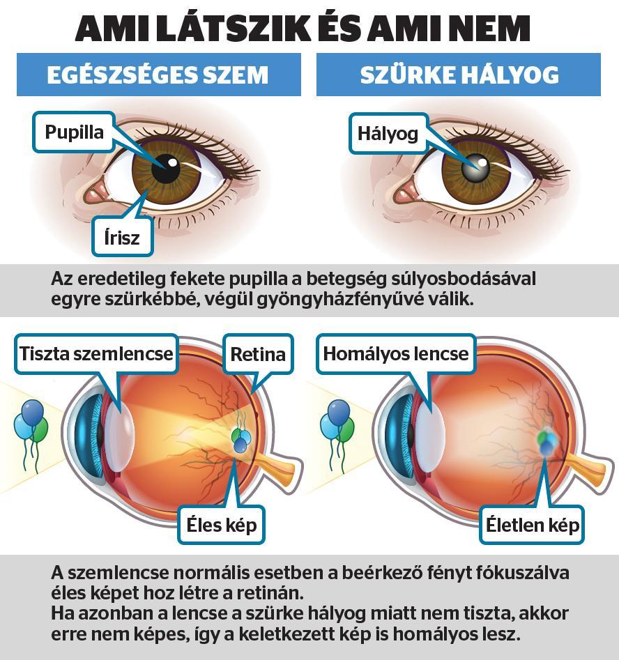a látásromlás módszerei az orvos látástechnikája