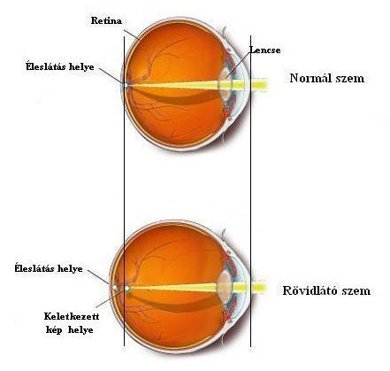 a rövidlátás egyik szemében erősebb