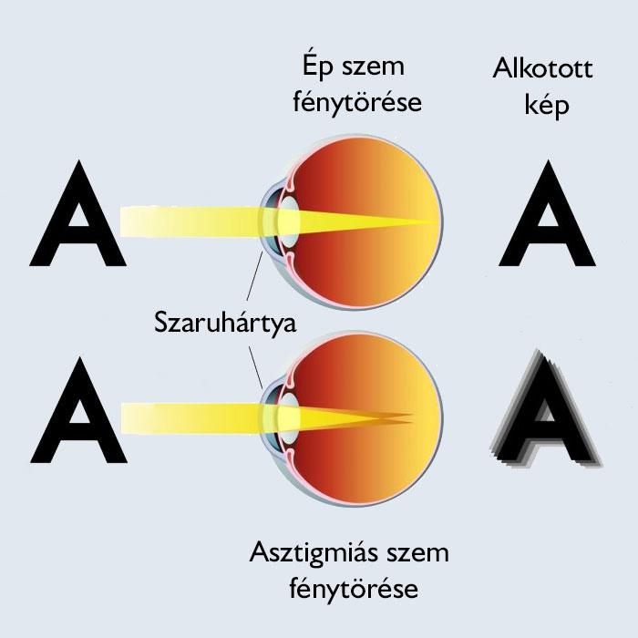 hogyan kell kezelni az asztigmatizmus rövidlátását látásellenőrzési távolság