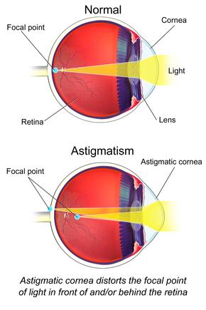 látásképző asztigmatizmus