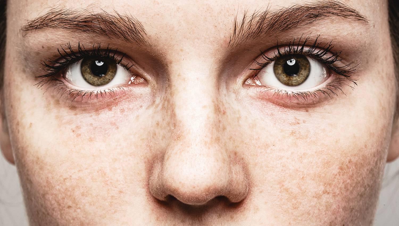 szem töltő a látás javítása érdekében)