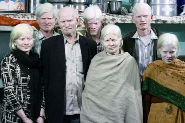 Albinizmus tünetei és kezelése - HáziPatika