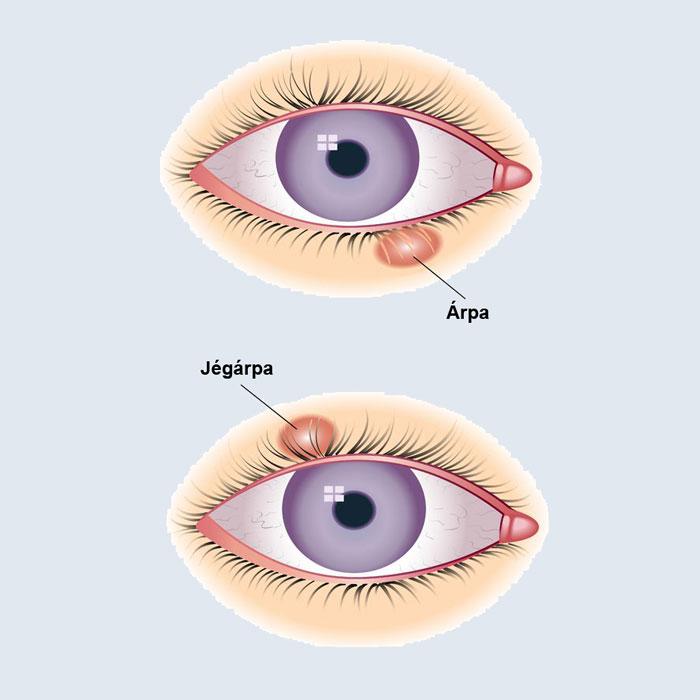 az egyik szem myopia kezelése