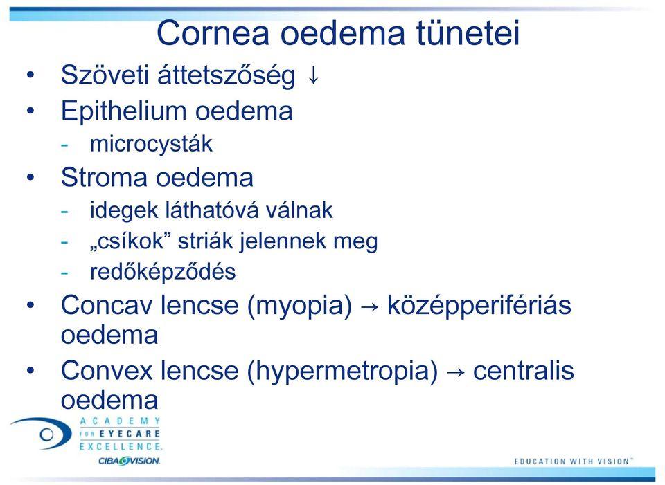 miként jelzik a myopia és a hyperopia