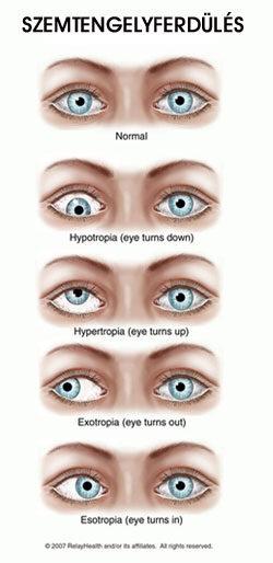 kikapcsolva az egyik szem látását