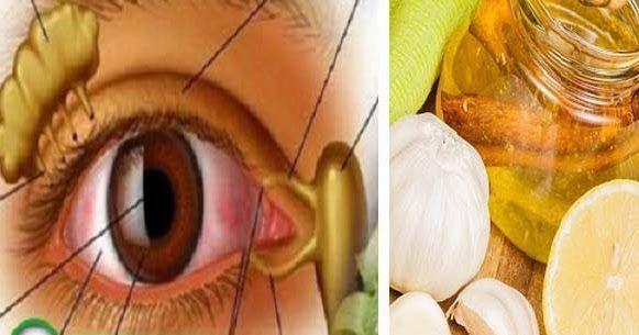 A látószervek veleszületett patológiáinak oka - Lézeres látáskorrekció áttekintése