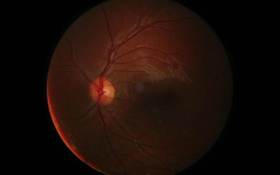 hogyan lehet visszaállítani a vak ember látását