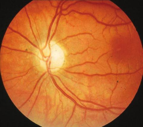 a látás helyreállítása egy kanállal