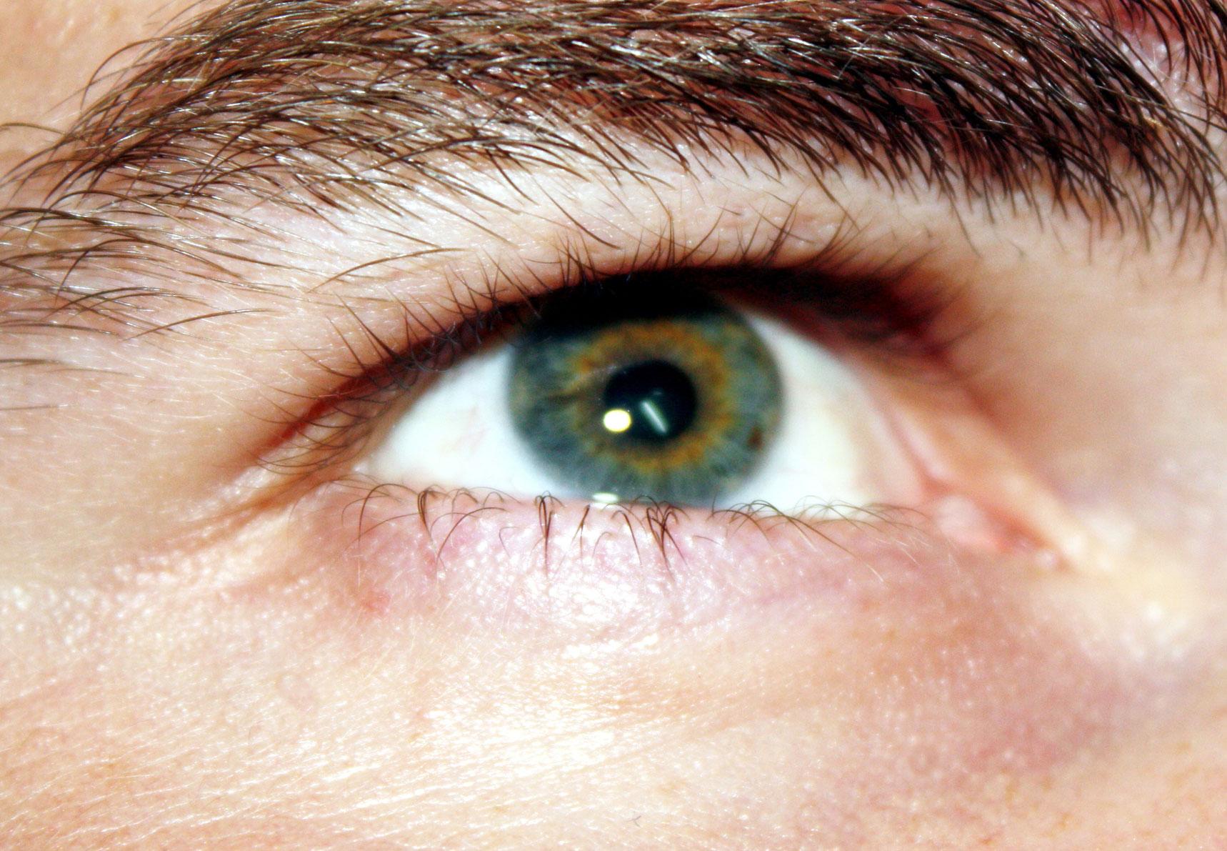 genetikai káros látás