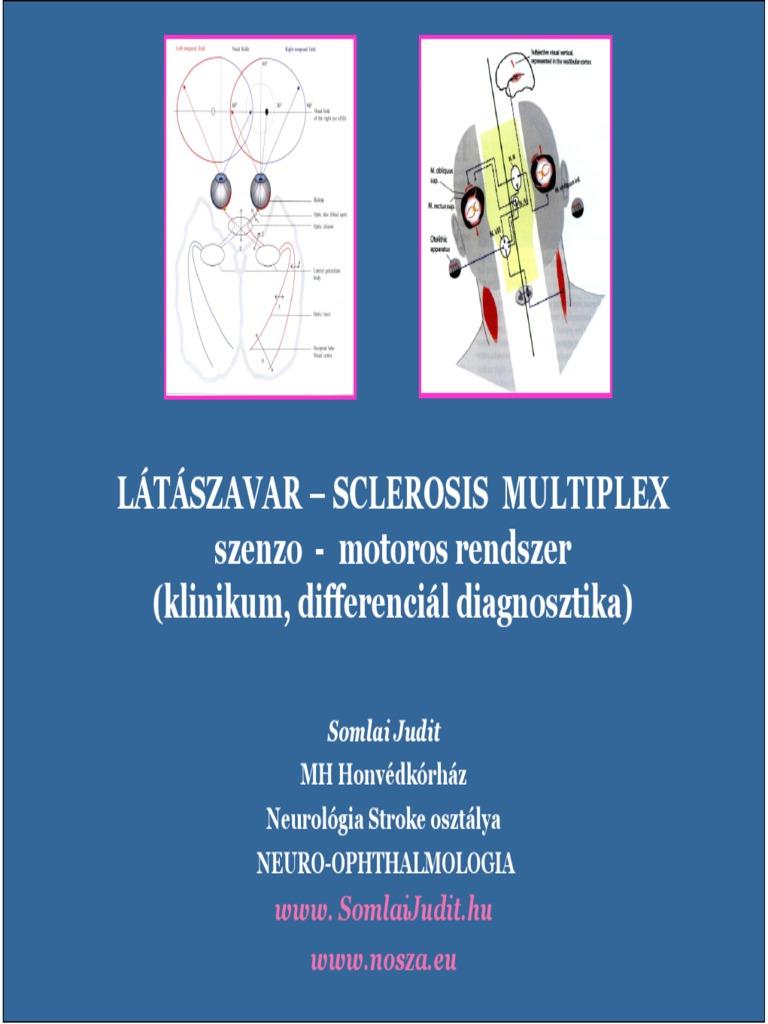 neuro-szemészeti rendszerek