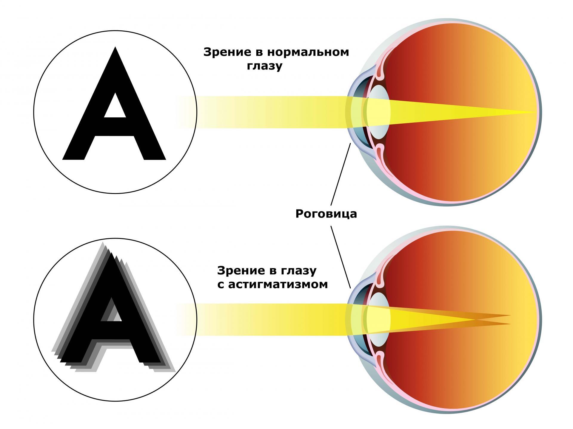 a látásra káros testmozgás myopia műtét nélkül