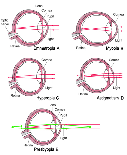 Hypermetropia/Hyperopia (távollátás)