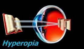 látvány víziló oris-oris a látás normalizálása