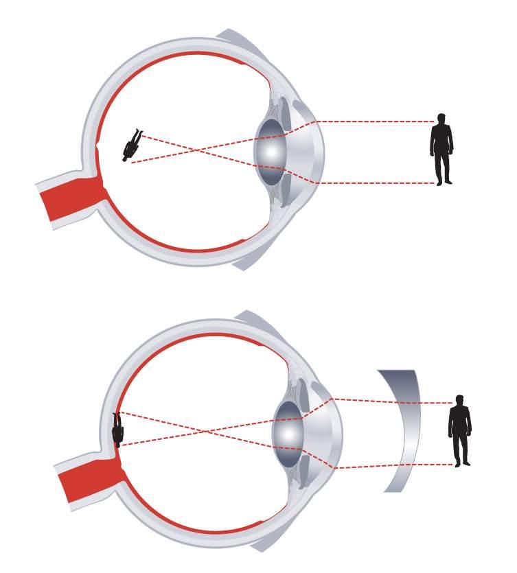 központi alakú látás)