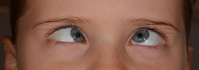 Hogyan jelenik meg és kezelik a látóideg ödéma?