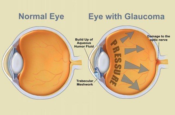 szembetegség glaukóma myopia
