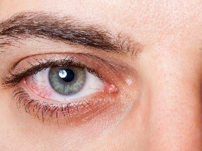 egyik szem rövidlátása