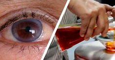 hová menjen tanulni a látássérültekkel ködös látás oka