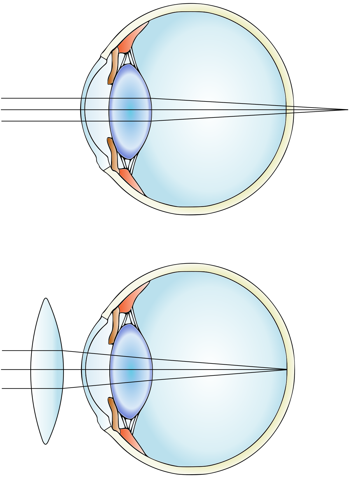 rövidlátás nanotechnológia
